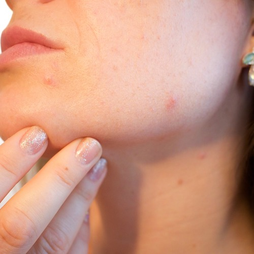 Understanding The Skin Condition Eczema